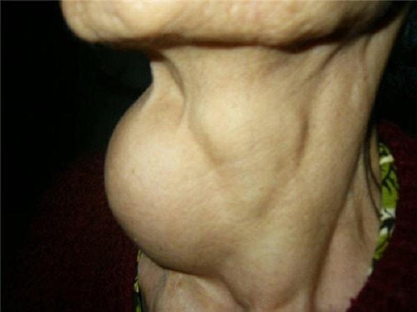 triệu chứng bướu giáp đa nhân 2